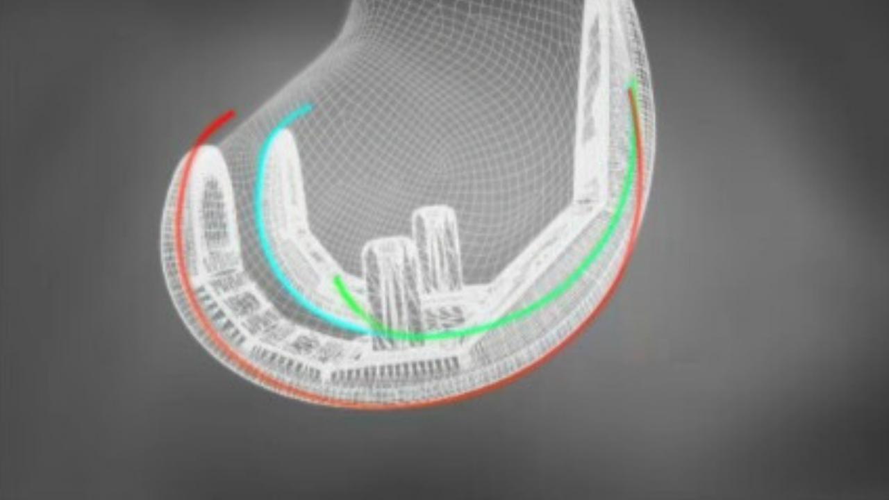 Knieprothese (Künstliches Kniegelenk)