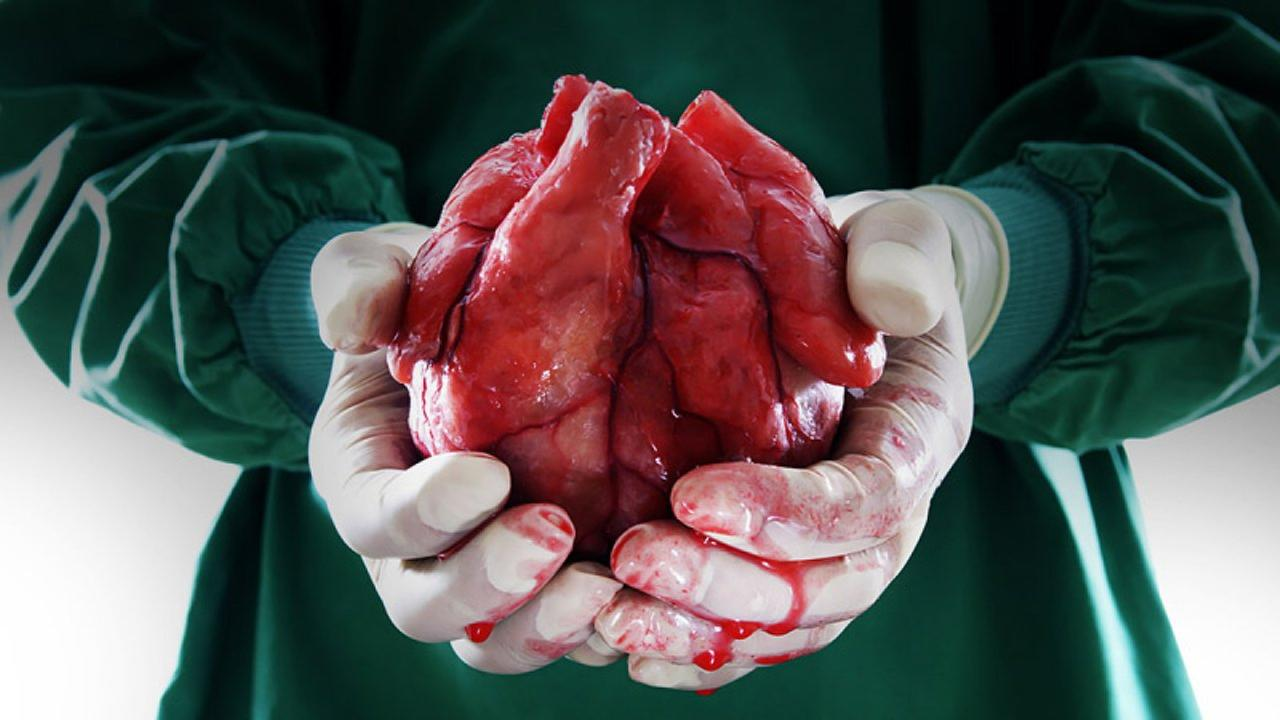 Organhandel