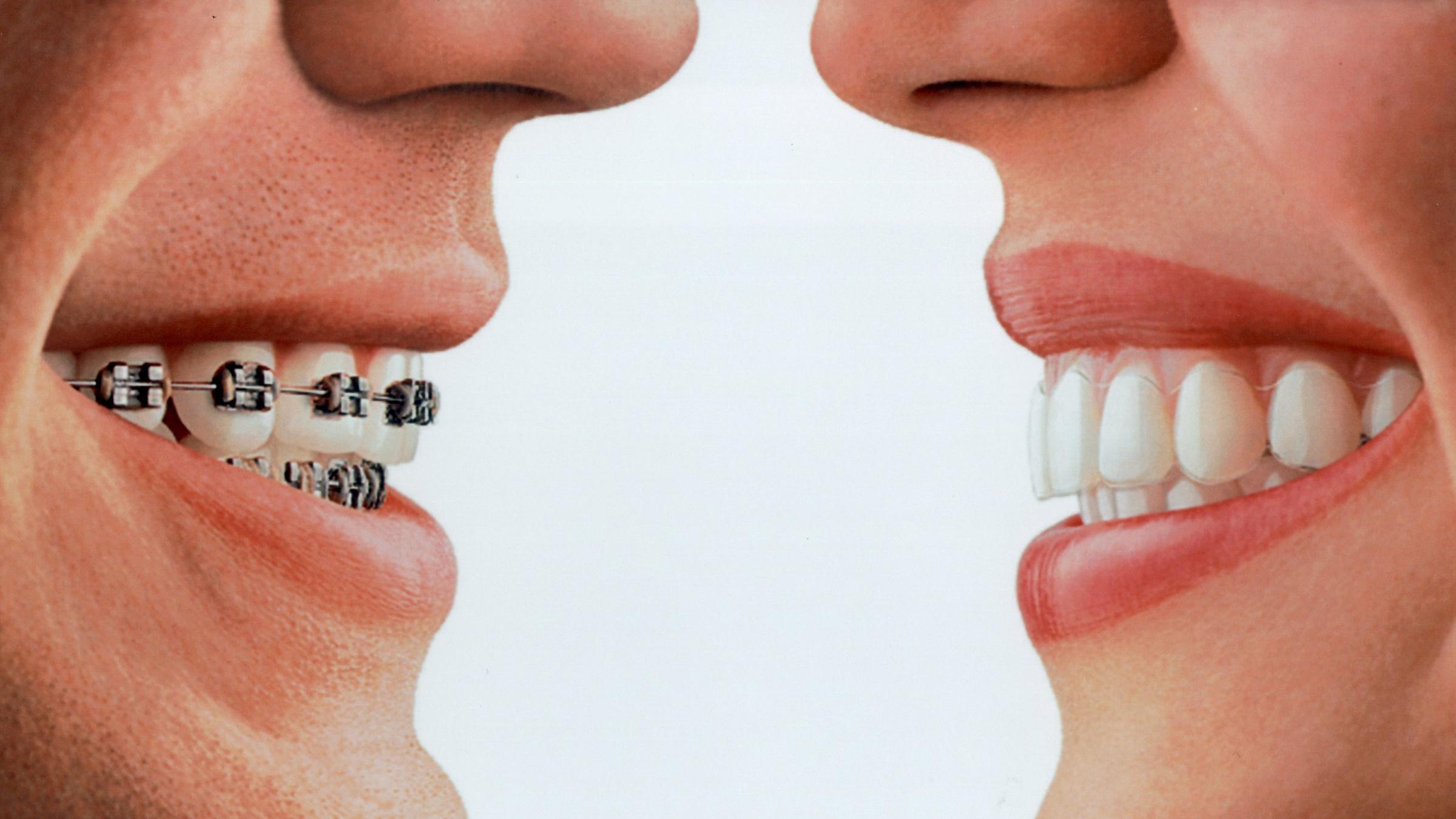 Lose zahnspange reinigen